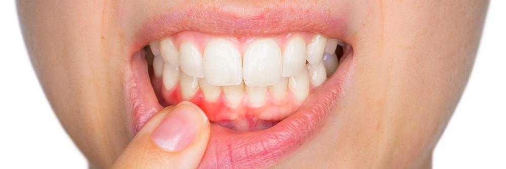 Zahnfleischentzündung durch Zahnbelag (Plaque)