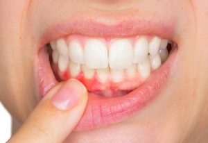 Gingivitis (Zahnfleischentzündung)